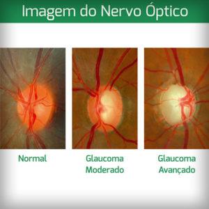 3-imagem-do-nevo-optico-colocar-em-glaucoma-e-em-estereofoto-de-papila
